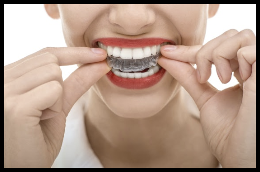 How To Properly Clean Invisalign Aligners